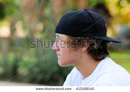acne natural
